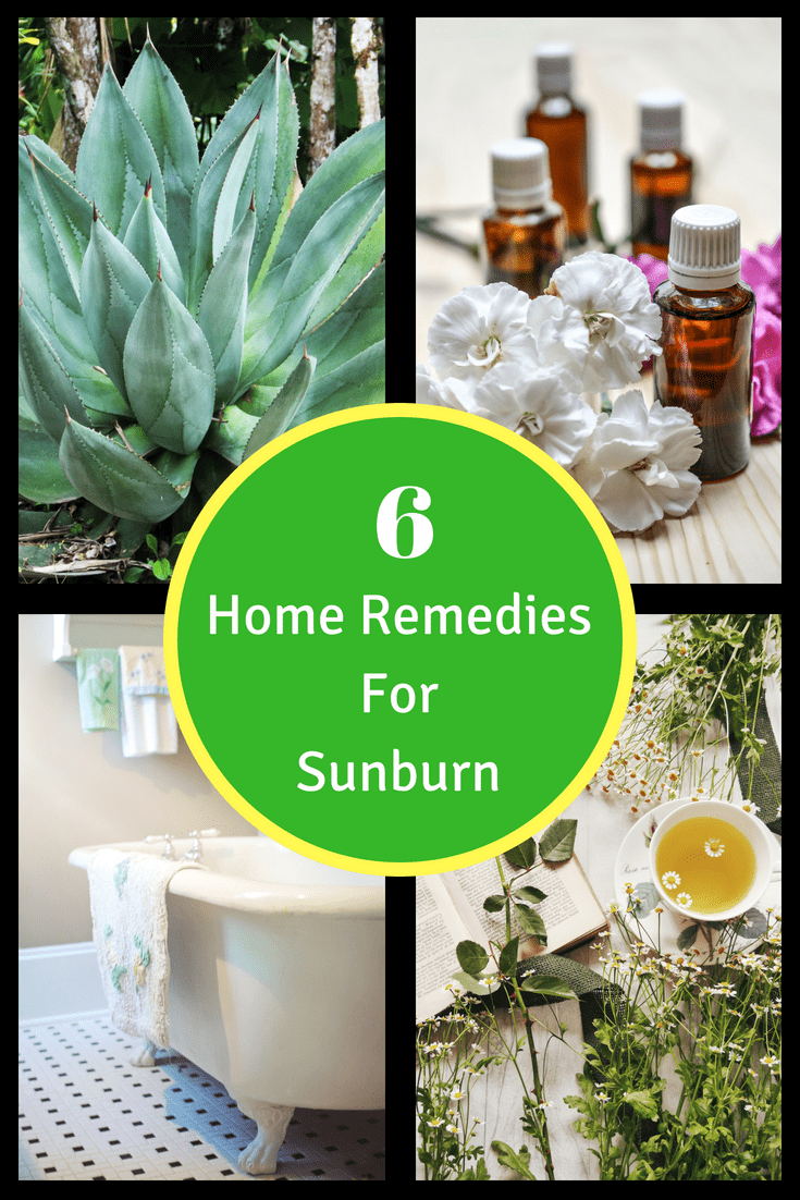 sunburn remedies